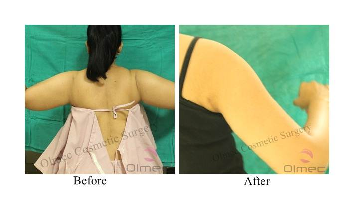 arm-reshaping-delhi-india01