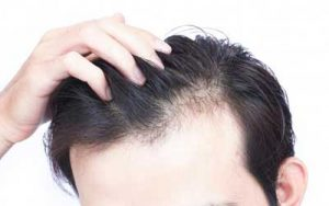 Hair Loss Treatment Delhi