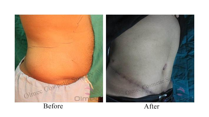 abdominoplasty-delhi-india03