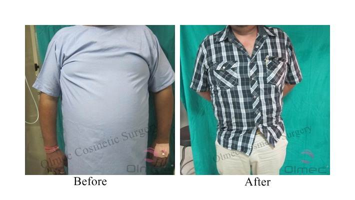 abdominoplasty-delhi-india06