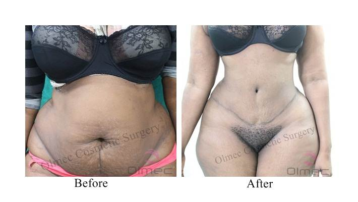 abdominoplasty-delhi-india08