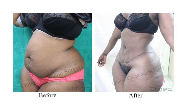 abdominoplasty-delhi-india09