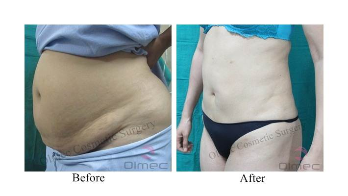 abdominoplasty-delhi-india16