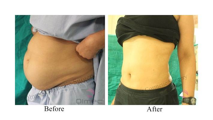 abdominoplasty-delhi-india17