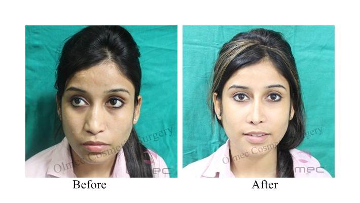 Facial Feminization Surgery Results in Delhi | FFS Surgery